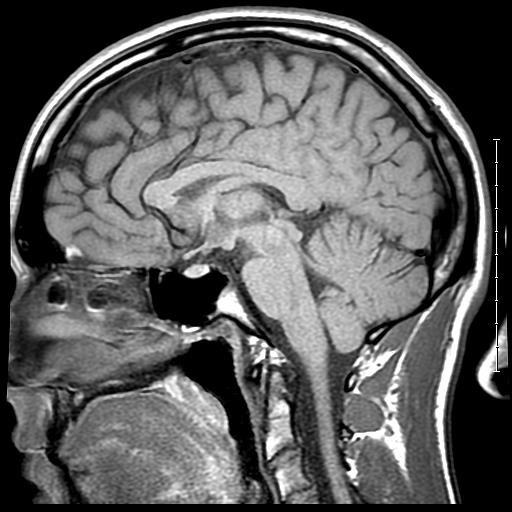 Jack's Brain